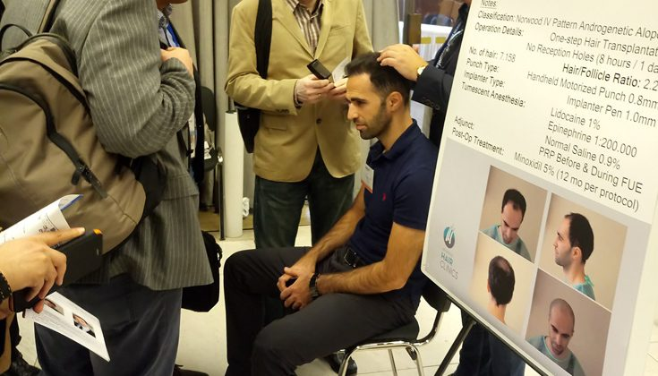 Αληθινά περιστατικά, αυθεντικά αποτελέσματα από την Advanced Hair Clinics