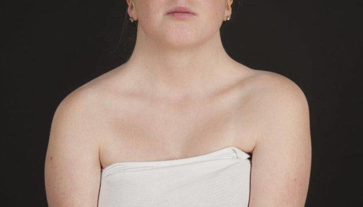 Η συχνότερη μη κληρονομούμενη χρωμοσωμική ανωμαλία στα κορίτσια