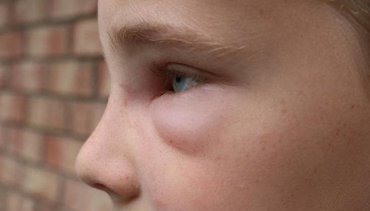 Το 7χρονο αγόρι που είναι αλλεργικό στον χειμώνα