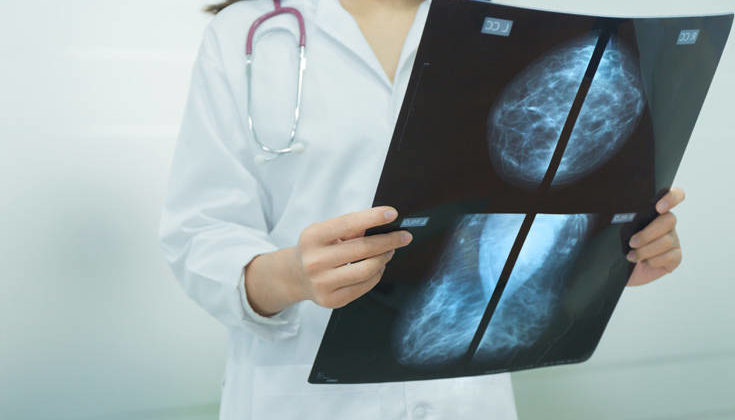 Ένας σημαντικός σύμμαχος στη διάγνωση του καρκίνου του μαστού